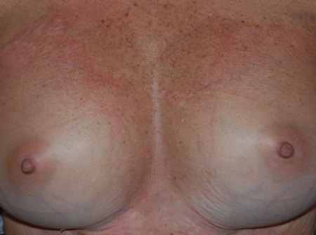 breast_aug_revision_after