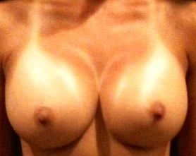 breast_augmentation_2_after