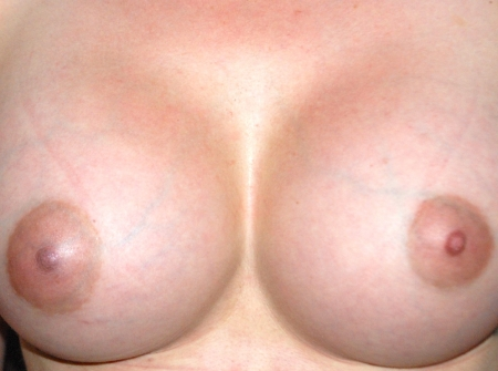 breast_augmentation_after