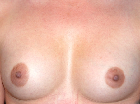 breast_augmentation_before